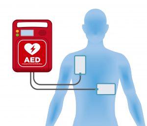 AED pad placement diagram